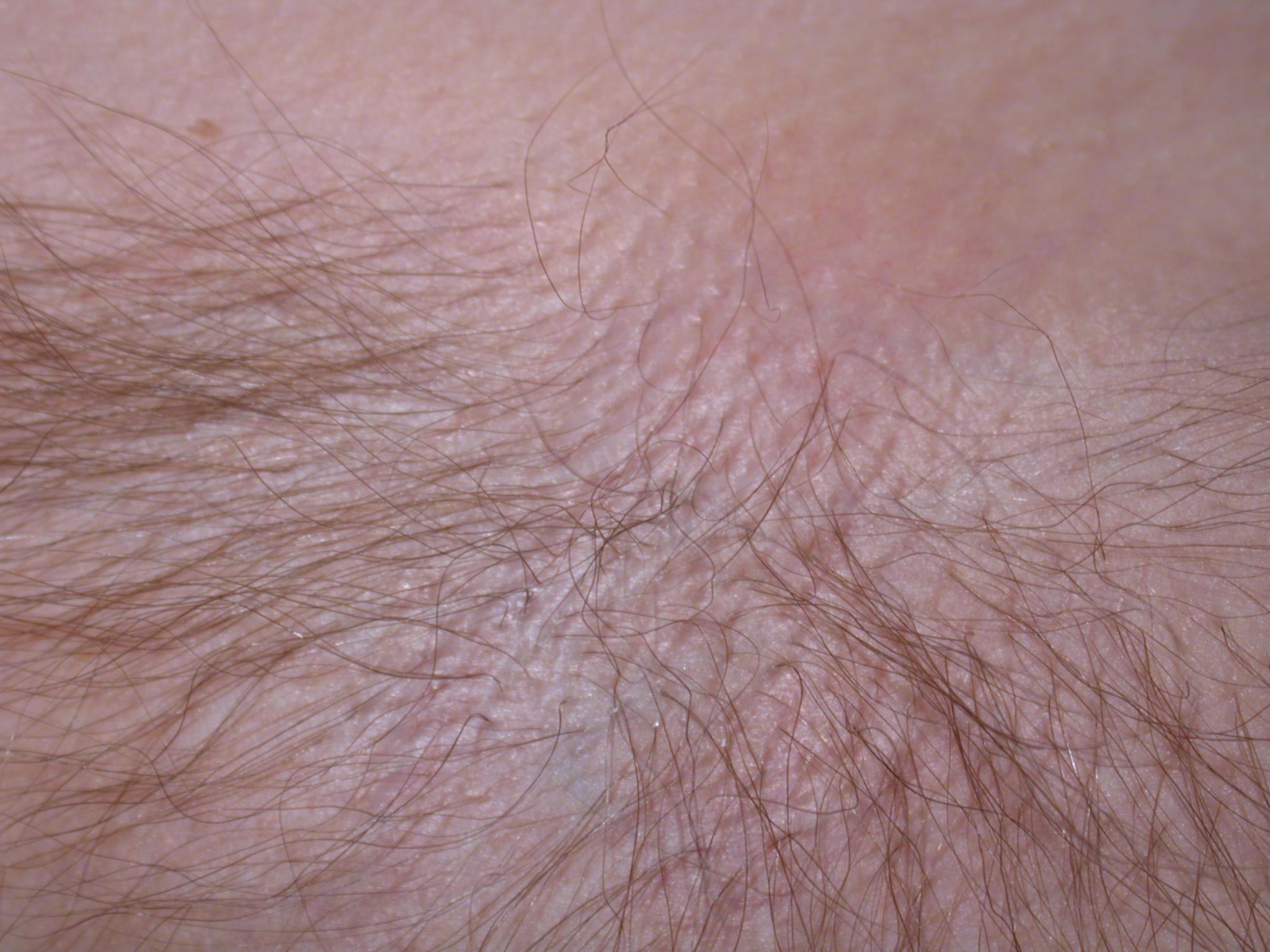 skin hairs closeup