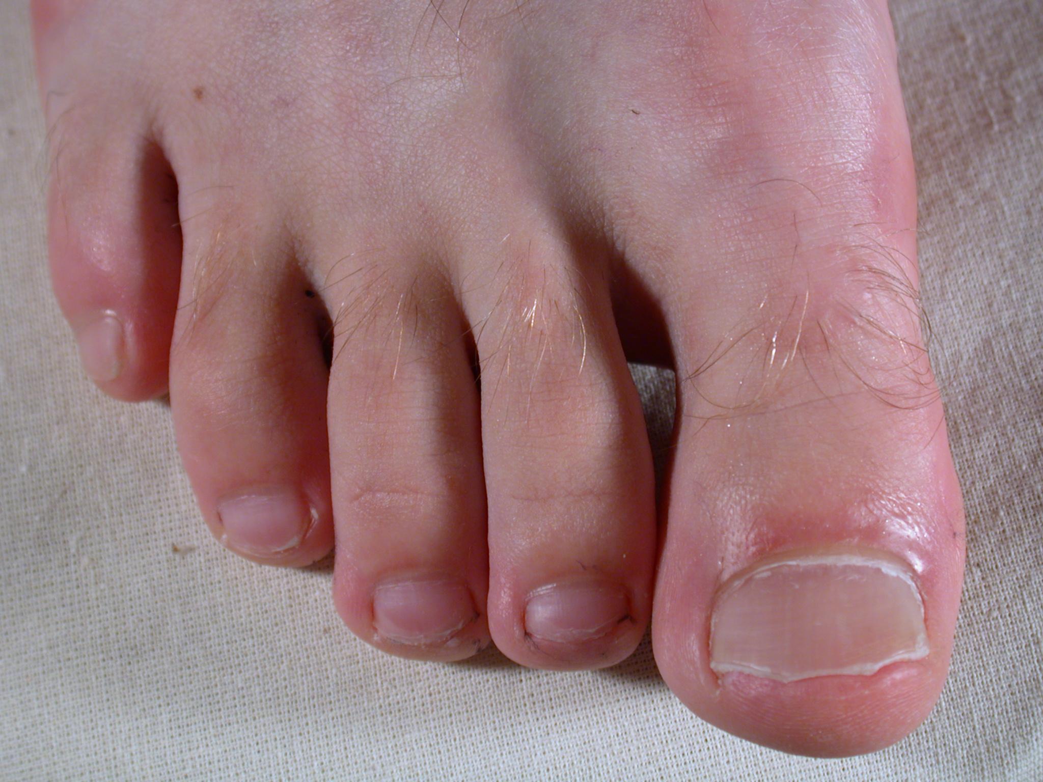 nature characters humanparts skin texture foot toe toes nail nails top male