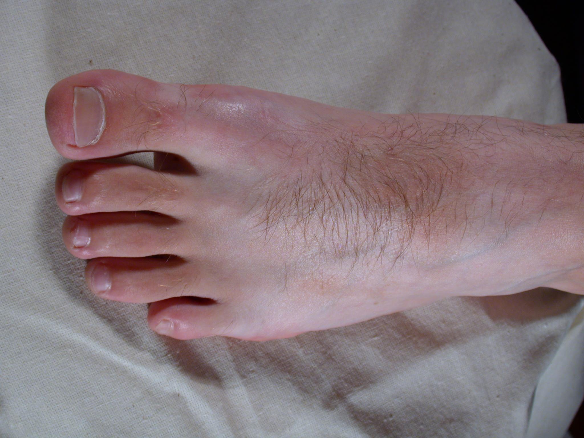 Skin Cirrhosis